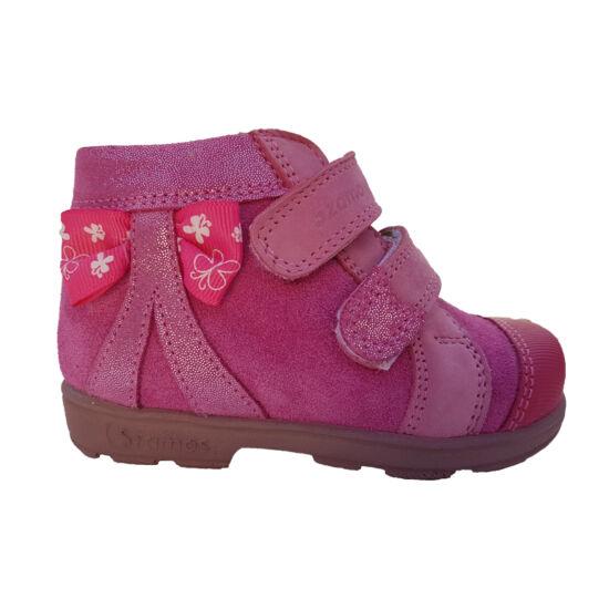 Masnis pink Szamos supinált kislány cipő