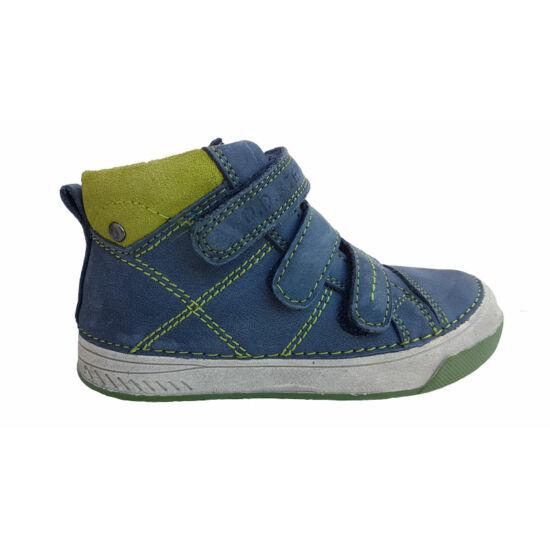 c1c2af5b15 Milyen gyerekcipőt válasszunk - magas lábfej, magas rüszt, torkos ...